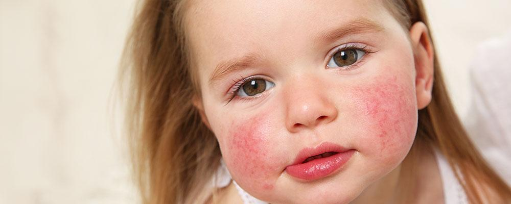 Chicago food allergy lawsuit attorney
